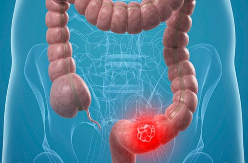 Καρκίνος εντέρου ποια τροφή σκοτώνει το 75% των όγκων