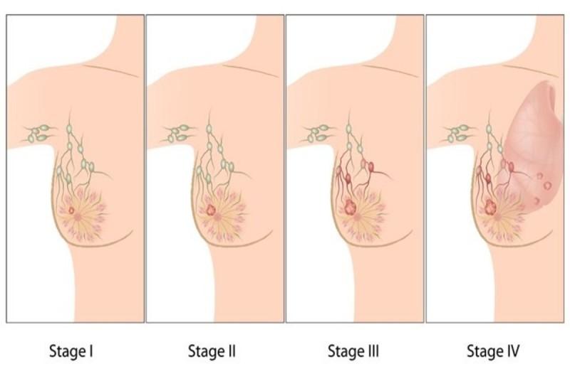 Καρκίνος του μαστού συμπτώματα