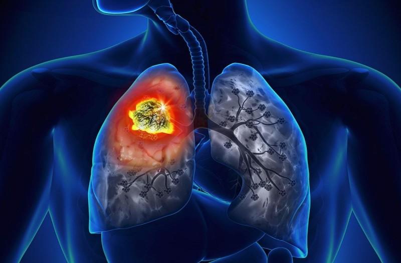 Καρκίνος του πνεύμονα πρώιμα συμπτώματα