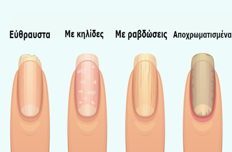 8 σημάδια στα νύχια που προειδοποιούν για σοβαρά προβλήματα υγείας