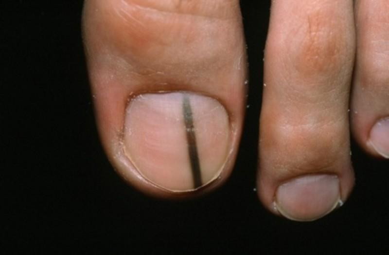 Πώς τα νύχια των ποδιών σας δείχνουν αν κινδυνεύετε από καρκίνο