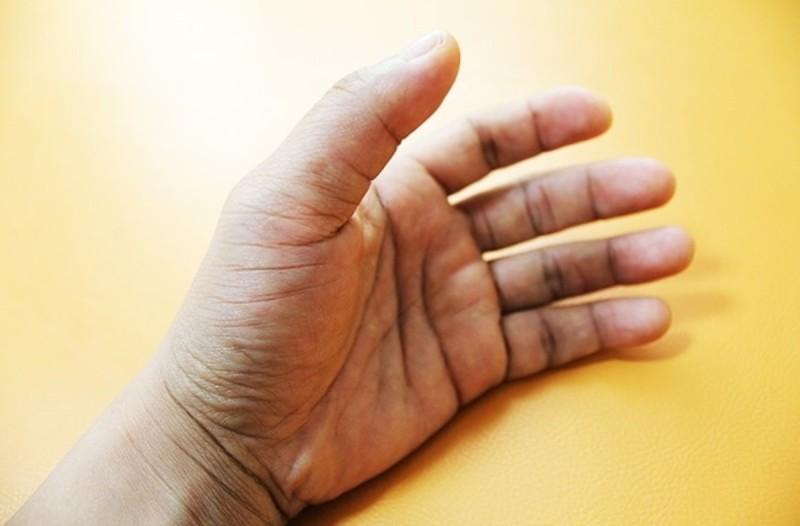 Οίδημα στα χέρια