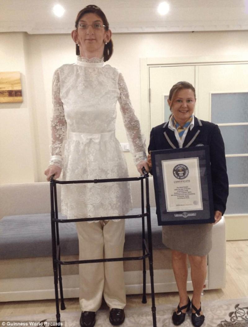 Το ύψος αυτής της έφηβης έχει προκληθεί από ένα συγκεκριμένο σύνδρομο.