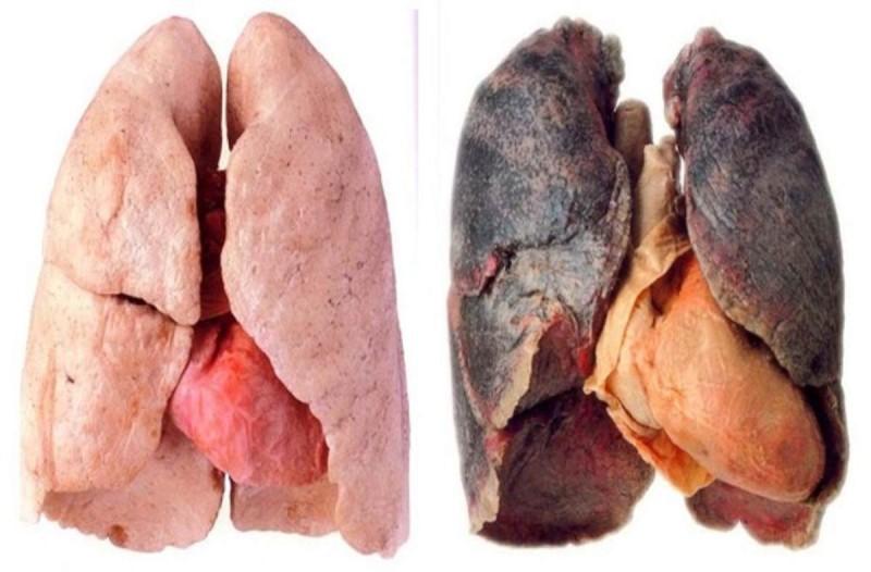 Βίντεο δείχνει πώς γίνονται οι πνεύμονες από το κάπνισμα