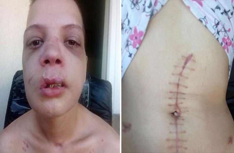 20χρονη Βουλγάρα δείχνει τα τραύματα που υπέστη από εμπόρους λευκής σαρκός στην χώρα της