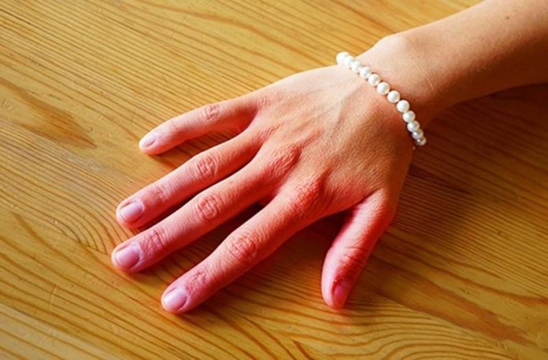 Αλλάζουν χρώμα τα χέρια