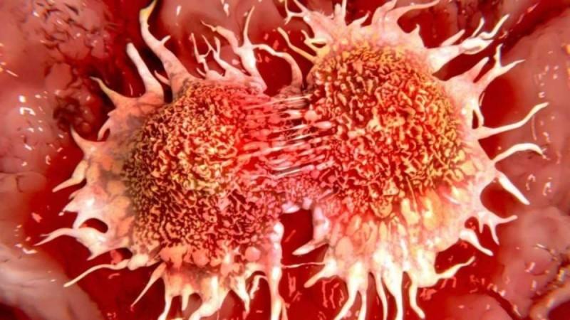 Χρόνιο νόσημα και όχι θανατηφόρο ο καρκίνος - Τι ανακοίνωσαν οι ειδικοί