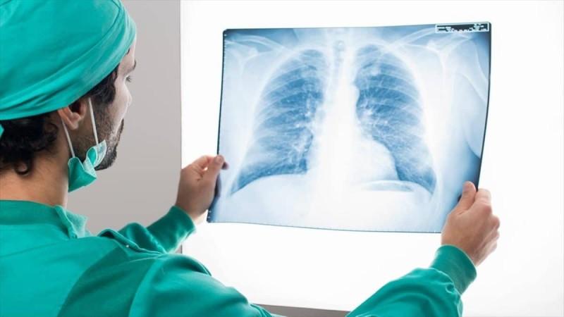 Καρκίνος του πνεύμονα: Σημάδια