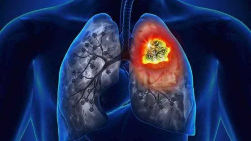 Καρκίνος του πνεύμονα: Συμπτώματα