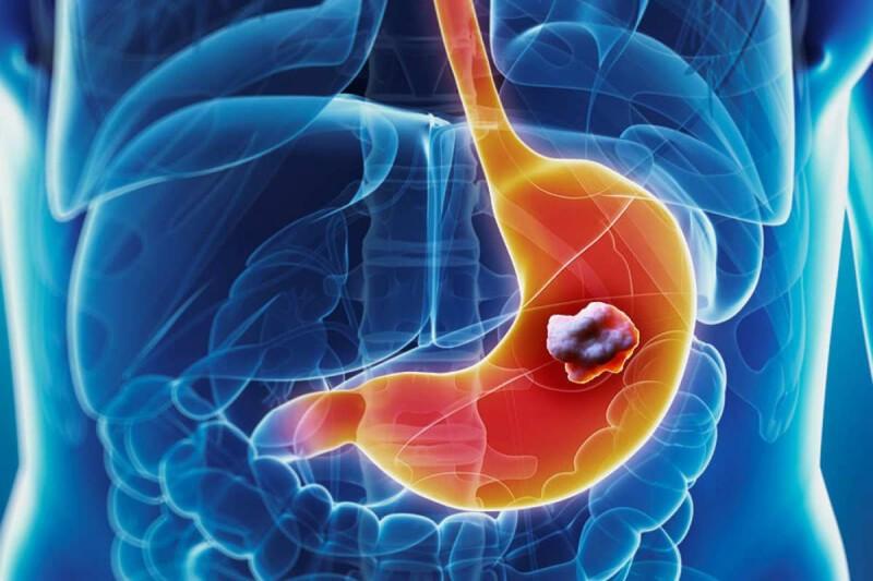 Καρκίνος στομάχου: Πώς διπλασιάζεται ο κίνδυνος
