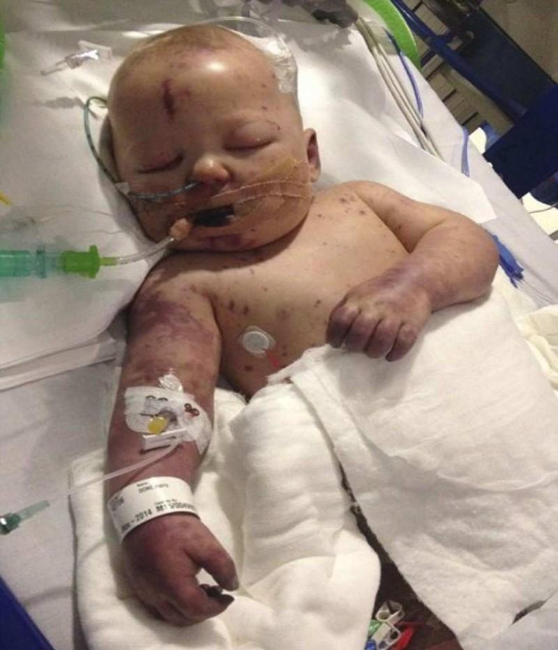 Παιδάκι πέθανε από μηνιγγίτιδα