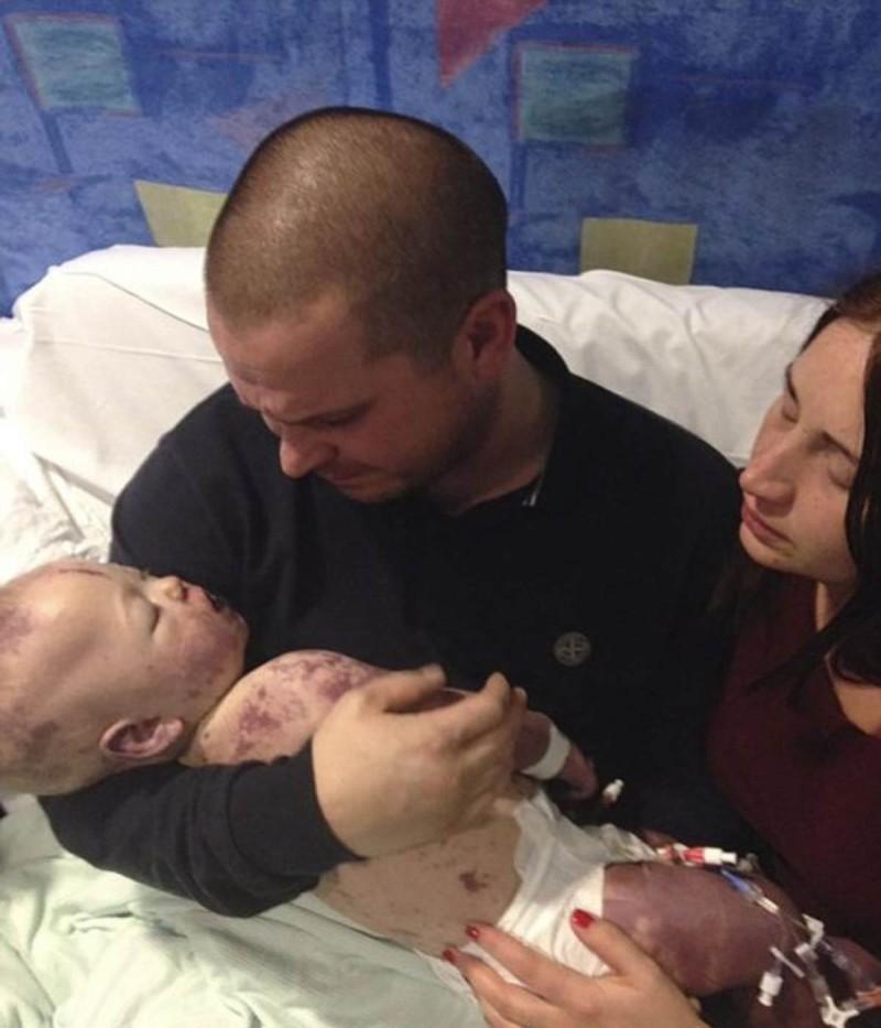 Μωράκι 8 μηνών πέθανε από μηνιγγίτιδα