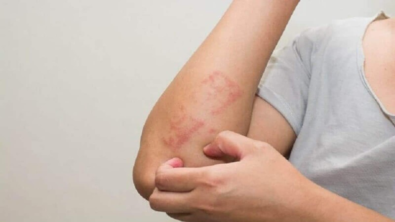 Λευχαιμία: Τα πρώτα ανησυχητικά σημάδια