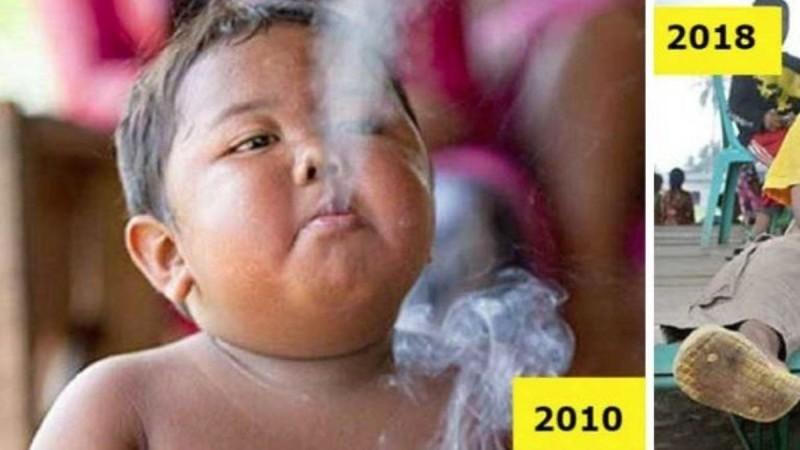 Θυμάστε το παχύσαρκο νήπιο που ήταν εθισμένο στο κάπνισμα; Δείτε πως είναι σήμερα μετά την... Θα μείνετε άφωνοι (Video)