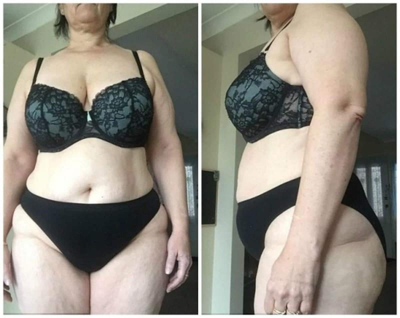 50χρονη γιαγιά έχασε 31,5 κιλά χωρίς γυμναστική