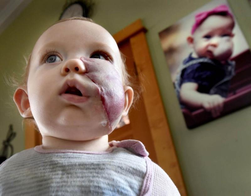 Κοριτσάκι που γεννήθηκε με ένα τεράστιο όγκο στο πρόσωπο μεταμορφώθηκε εντελώς - Δείτε πως είναι σήμερα