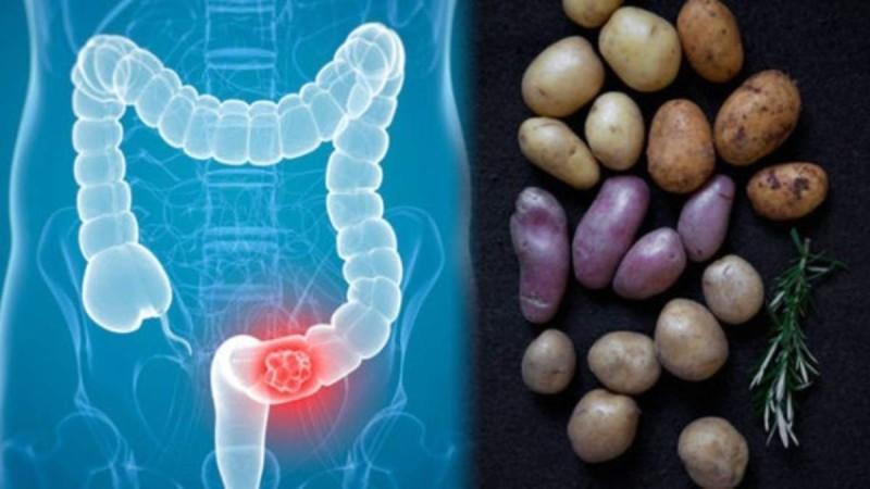 Καρκίνος του παχέος εντέρου: Πώς συνδέεται με τις πατάτες που τρώμε;