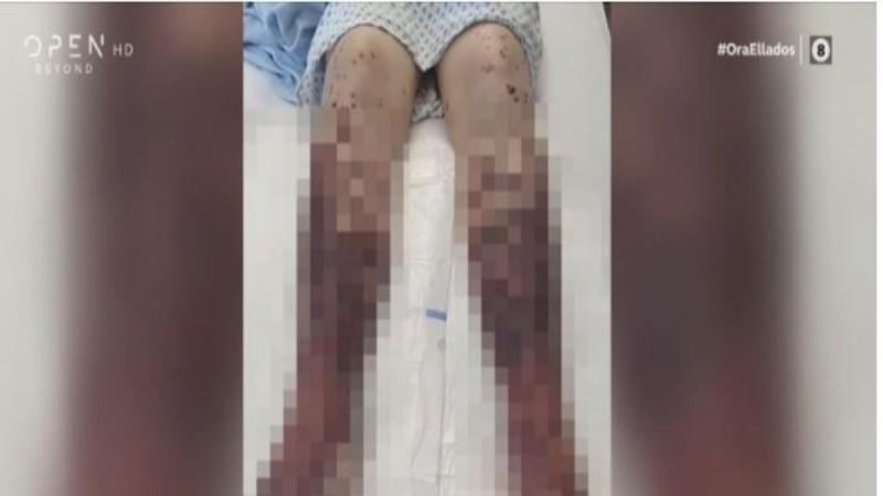 Σοκάρουν οι εικόνες 34χρονης που εμβολιάστηκε με AstraZeneca