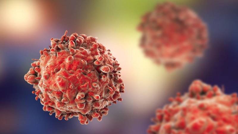 Κόψτε τη «μαχαίρι»: Η τροφή που πρέπει να σταματήσετε άμεσα για να «πολεμήσετε» τον καρκίνο