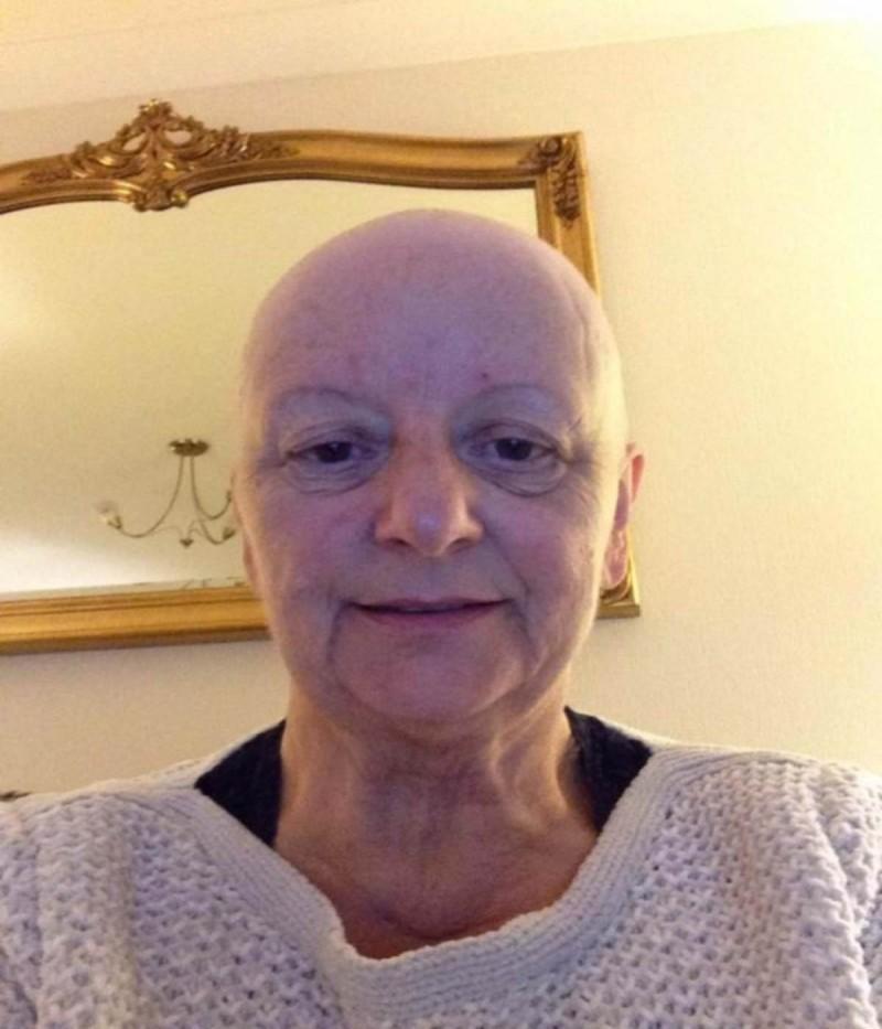 Αυτή η 64χρονη δεν είχε ιδέα τι μεγάλωνε στον ώμο της