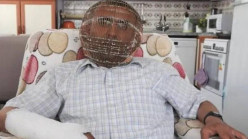 Τύπος κλείδωσε το κεφάλι του σε κλουβί για να κόψει το κάπνισμα