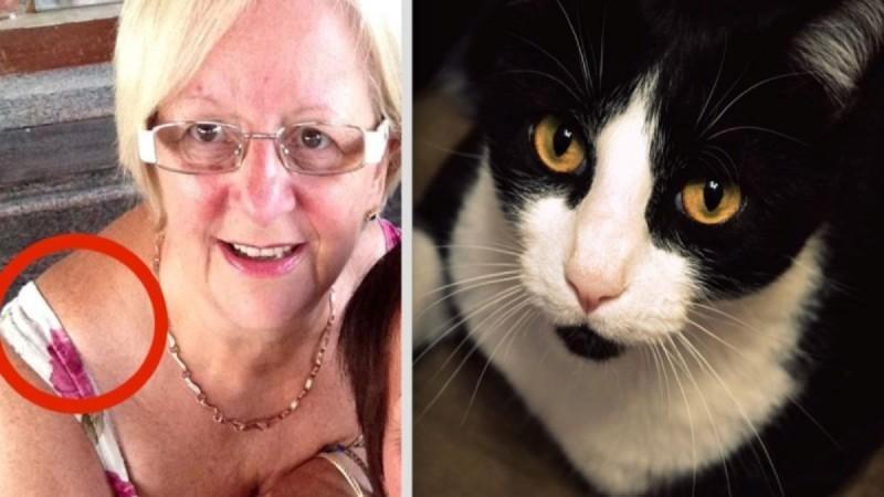 Αυτή η 64χρονη δεν είχε ιδέα τι μεγάλωνε στον ώμο της - Η γάτα της όμως κατάλαβε ότι κάτι δεν πήγαινε καλά