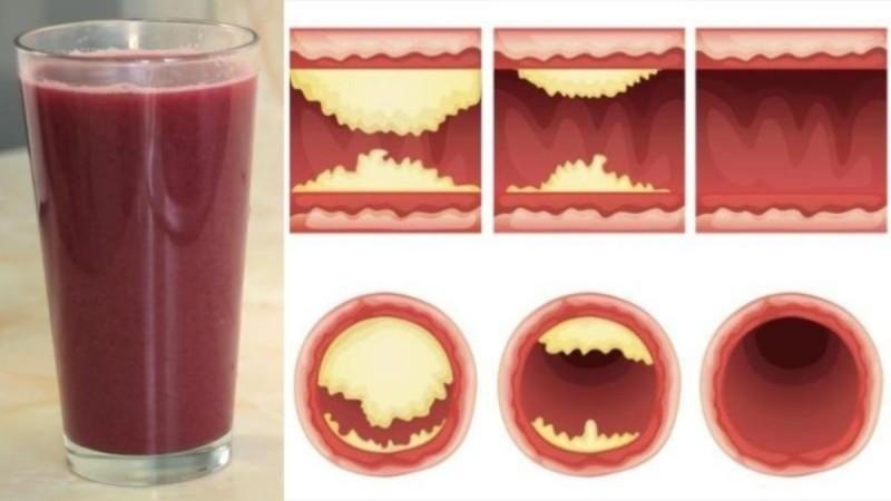 Το θαυματουργό ρόφημα που καθαρίζει τις αρτηρίες και προστατεύει την καρδιά - Δοκιμάστε το (Video)