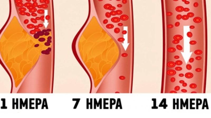 Δίαιτα ΝΤΑΣ: Γιατί οι γιατροί την θεωρούν μια από τις καλύτερες για την υγεία!
