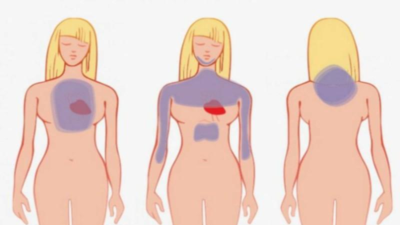 Πως να αναγνωρίσετε μια καρδιακή προσβολή έναν μήνα πριν συμβεί!