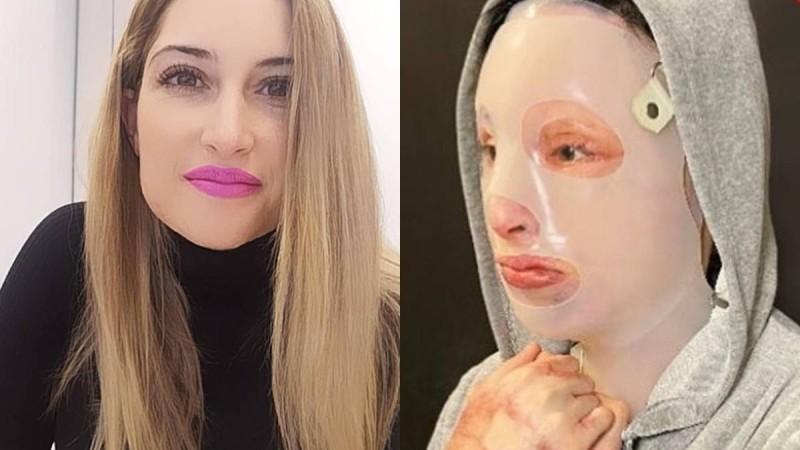 Επίθεση με βιτριόλι: Συγκινεί με την εικόνα της από το χειρουργείο η Ιωάννα - Η δήλωση που «λύγισε» την Ελλάδα και η ομολογία της 35χρονης