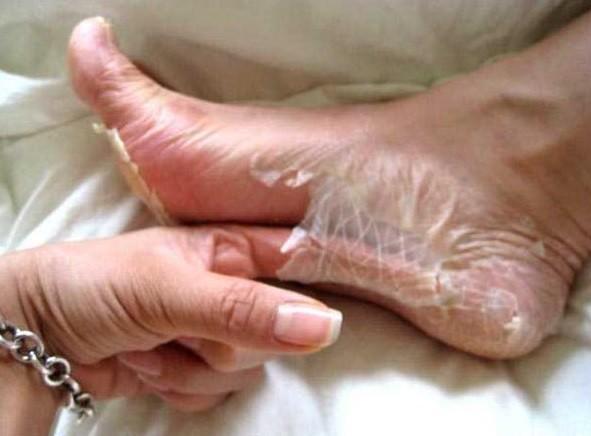 Πόδια ασθένεια