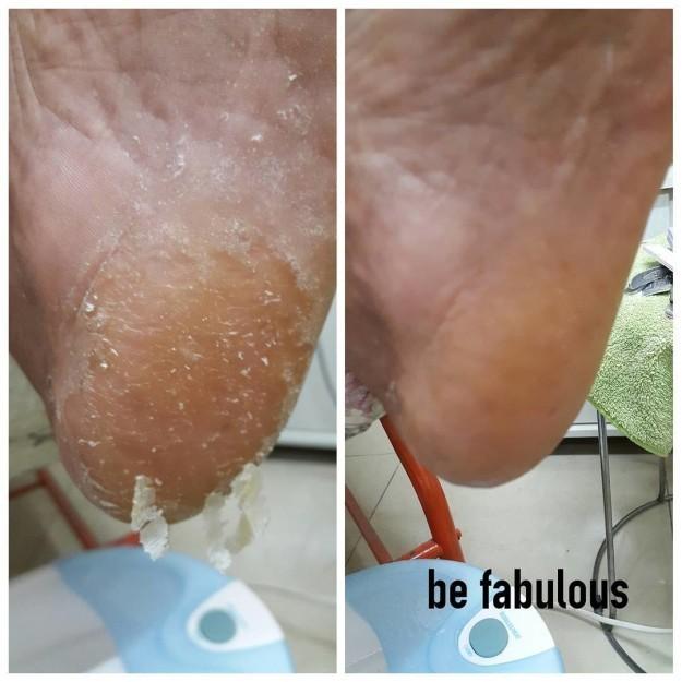 Ασθένεια ποδιών