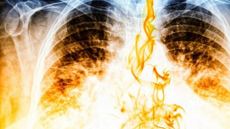 Τσιγάρο - Καρκίνος: Σοκαριστικό βίντεο που δείχνει πως γίνονται οι πνεύμονες από το κάπνισμα!