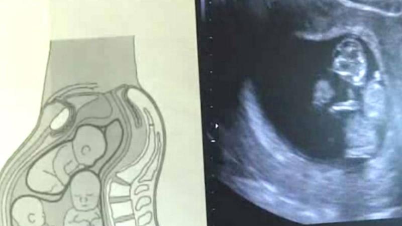 33χρονη ήταν έγκυος σε τρίδυμα! Όταν οι γιατροί είδαν αυτό στον υπέρηχο