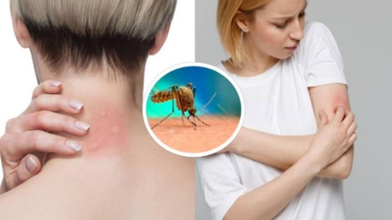Σύνδρομο Skeeter: Τι είναι η αλλεργική αντίδραση στο τσίμπημα του κουνουπιού!