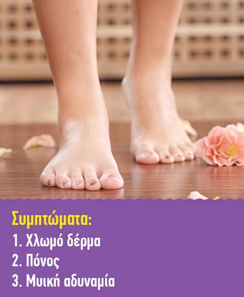 Αθηροσκλήρωση πόδια