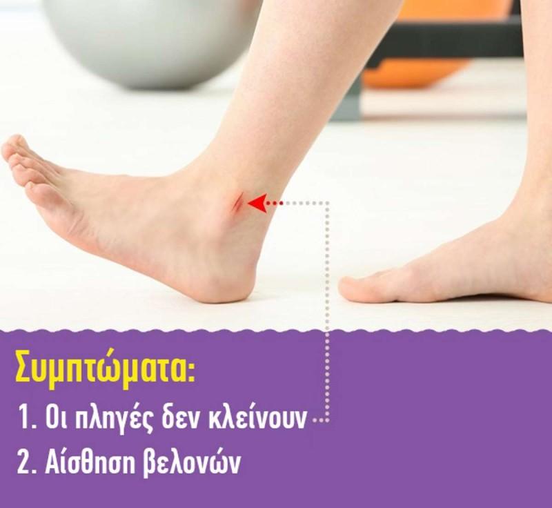 Διαβήτης πόδια