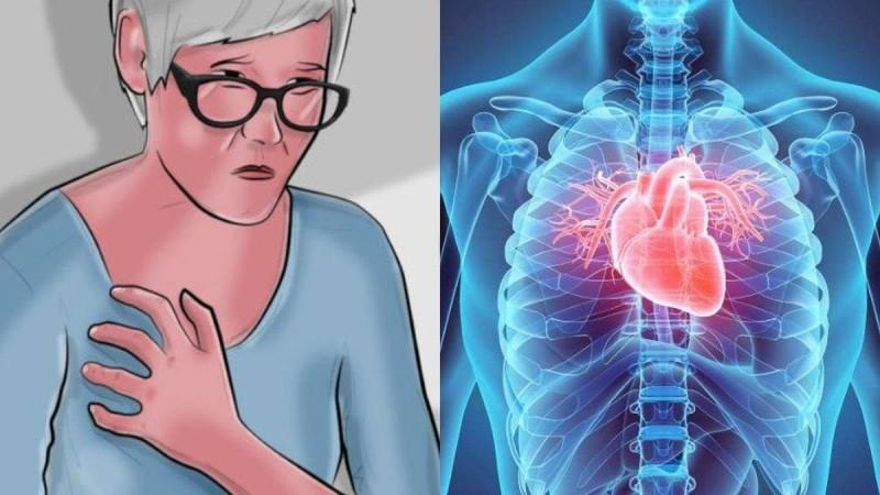 Γυναίκες προσοχή: Τα 8 συμπτώματα της καρδιακής προσβολής που δεν πρέπει να αγνοήσετε
