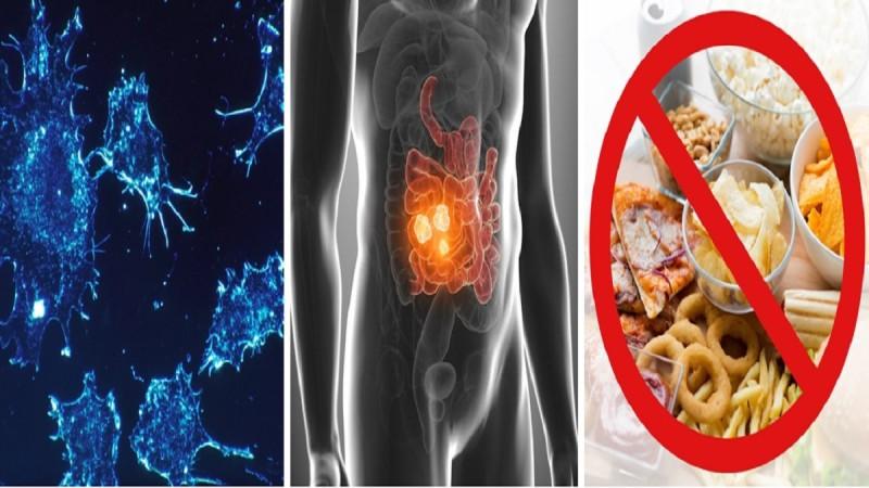 Αποκάλυψη ογκολόγου: Ασθενείς με καρκίνο του εντέρου