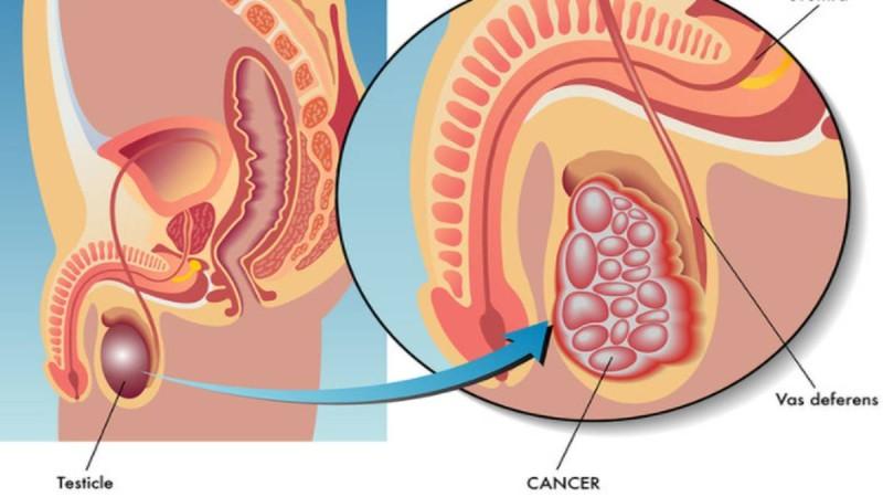 Καρκίνος των όρχεων: Αν έχετε αυτά τα συμπτώματα τρέξτε αμέσως στον γιατρό!