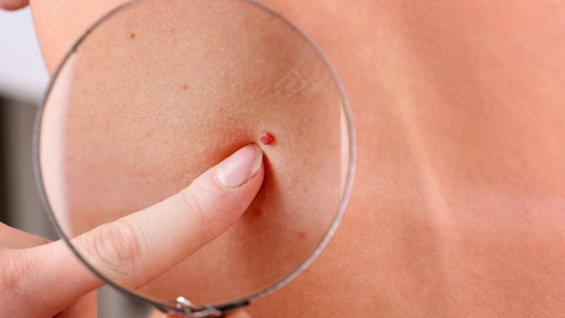 Κόκκινες Ελιές: Προσοχή! – Πότε εμφανίζονται και τι σημαίνουν για την υγεία μας