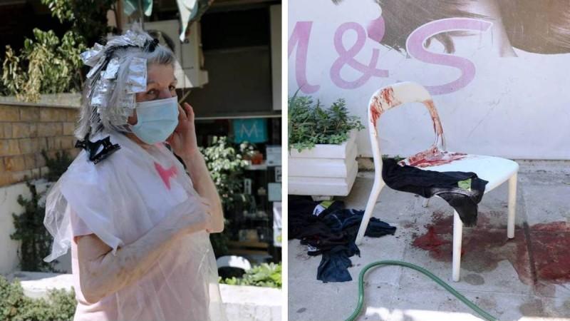 «Ελάτε έχω σκοτώσει κόσμο»: Σε αμόκ 54χρονος μαχαίρωσε περαστικούς με ματσέτα - Πολύ σκληρές εικόνες
