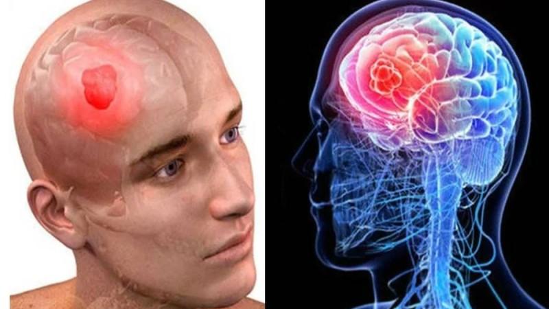 Όγκος στον εγκέφαλο: Αν έχετε αυτά τα συμπτώματα τρέξτε αμέσως στον γιατρό!