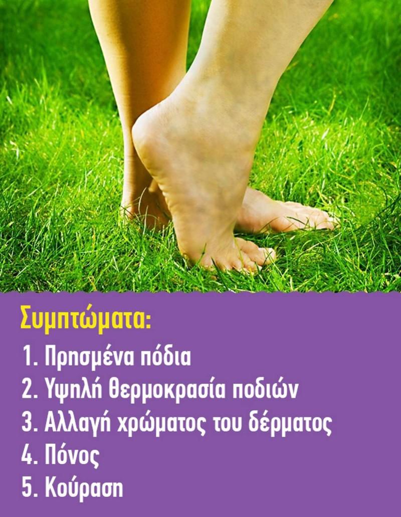 Θρόμβωση πόδια
