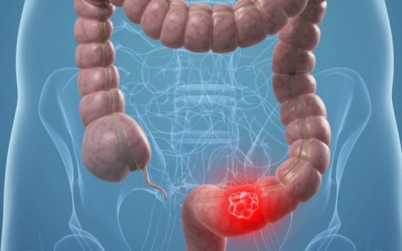 Τροφές για τον καρκίνο του παχέος εντέρου