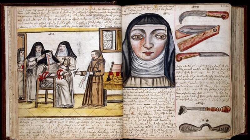 Συγκλονιστικές εικόνες: Πώς γίνονταν οι χειρουργικές επεμβάσεις το 1840