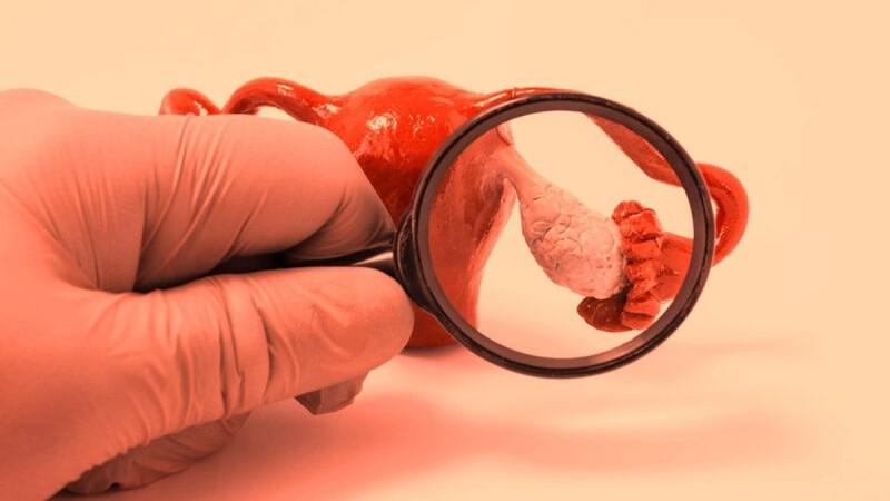 """Καρκίνος ωοθηκών: Προσοχή στα """"ύπουλα"""" συμπτώματα!"""