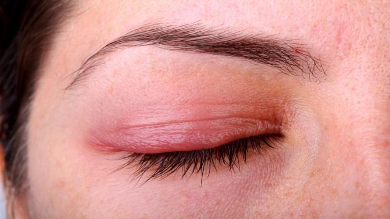 Προσοχή στις αλλεργίες στα μάτια: Aν έχετε αυτά τα συμπτώματα τρέξτε αμέσως στο γιατρό