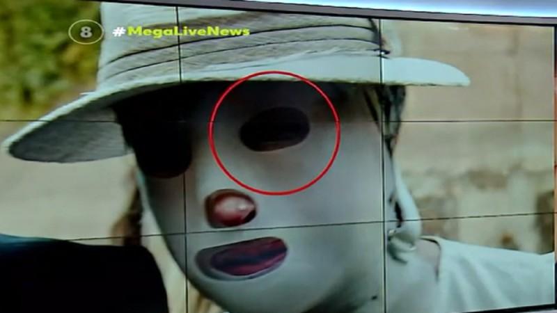 Επίθεση με βιτριόλι: Αγώνας για να σωθεί η όραση της Ιωάννας! (Video)