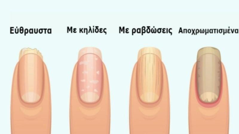 7 + 1 σημάδια στα νύχια που προειδοποιούν για σοβαρά προβλήματα υγείας